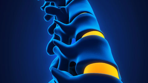 Doctor failed to detect spinal abnormality