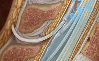 Updated Guidelines on Intrathecal Therapy for Pain