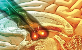 Deep Brain Stimulation Can Treat Pain After All