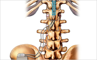Spinal Cord Stimulation May Effectively Treat Painful Diabetic Neuropathy